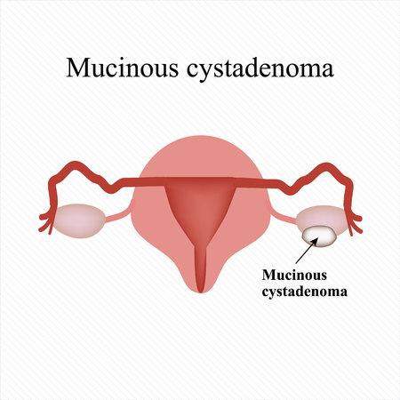 infertile: Mucinous cyst on the ovary. Cystadenoma. Ovary. Infographics illustration