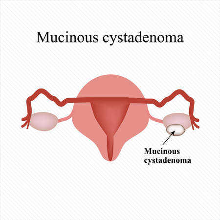 Mucinous cyst on the ovary. Cystadenoma. Ovary. Infographics illustration