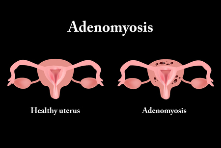 fertilisation: Endometriosis. The structure of the pelvic organs. Adenomyosis.