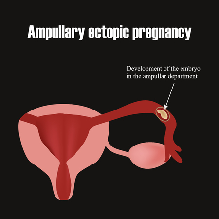 infertile: Development of the embryo in the ampullar department. Ectopic pregnancy. Infographics. illustration.