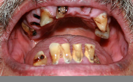 Rotten bad teeth. Beard and mustache. Caries. Periodontal disease. Dental tartar