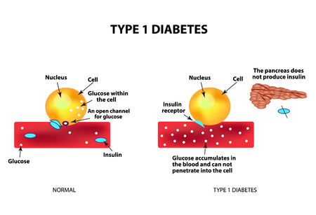 The absorption of glucose by the cell. Type 1 diabetes. Increase and decrease blood sugar. Insulin. Infographics. Vector illustration on isolated background