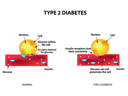 glucagon: The absorption of glucose by the cell. Type 2 diabetes. Increase and decrease blood sugar. Insulin. Infographics. Vector illustration on isolated background Illustration