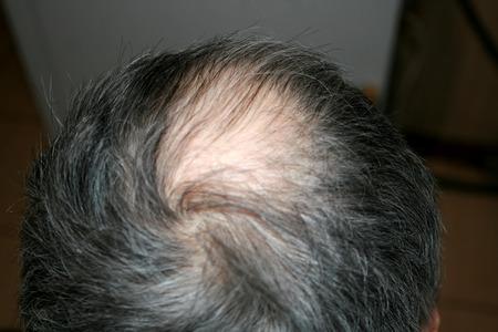 Bald head of a man. Receding hairline Stock Photo
