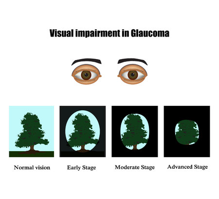 The field of vision in glaucoma infographics.