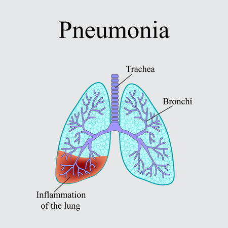 exhalation: Pneumonia. The anatomical structure of the human lung. Vector illustration on a gray background.
