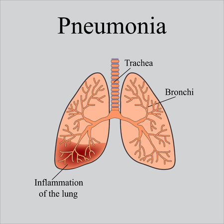 Pneumonia the anatomical structure of the human lung vector the anatomical structure of the human lung vector illustration on a gray background ccuart Image collections