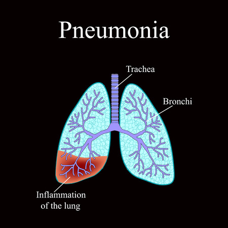exhalation: Pneumonia. The anatomical structure of the human lung. Vector illustration on a black background.