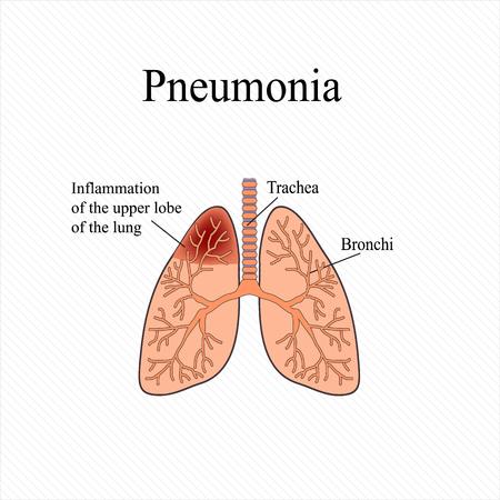 Lungenentzündung. Die Anatomische Struktur Der Menschlichen Lunge ...