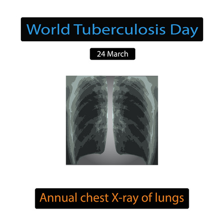 alveolus: X-rays of light. Diagnosis of tuberculosis. Infographics. Vector illustration on isolated background.