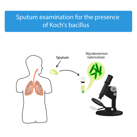 Sputum examination. World Tuberculosis Day. Infographics. Vector illustration on isolated background.