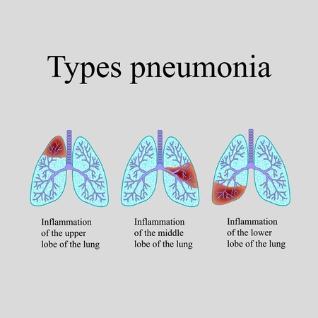 exhalation: Pneumonia. The anatomical structure of the human lung. Type of pneumonia. Vector illustration on a gray background.