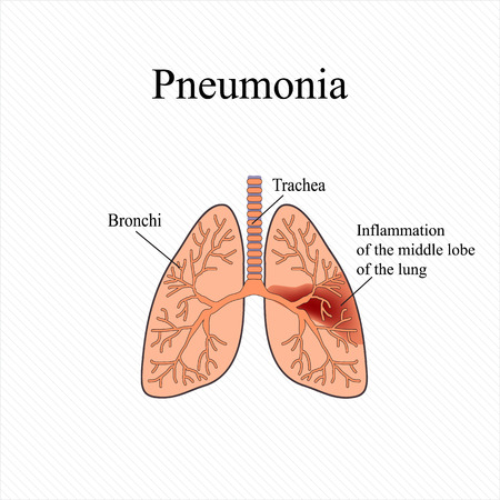 Pneumonia the anatomical structure of the human lung vector the anatomical structure of the human lung inflammation of the middle lobe of ccuart Image collections