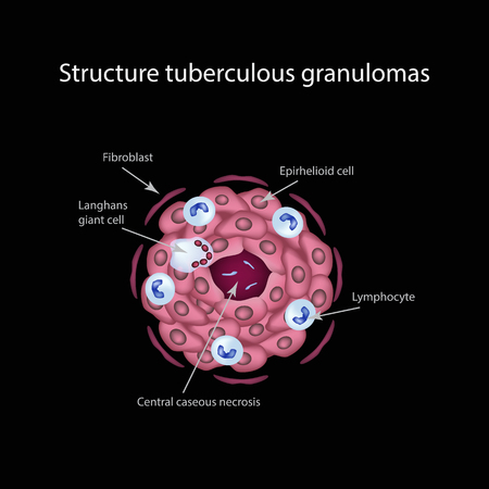 The structure of tuberculous granulomas. Infographics. Vector illustration Illustration