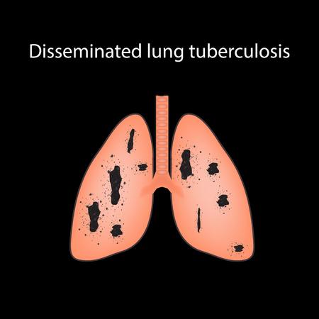 alveolos: Tuberculosis diseminada. Infografía. Ilustración de vector sobre fondo negro. Vectores