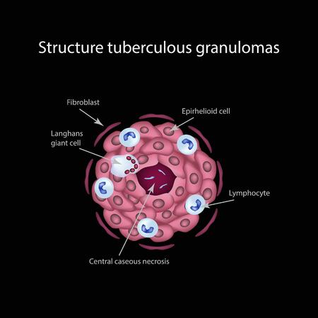 lesion: The structure of tuberculous granulomas. Infographics. Vector illustration Illustration