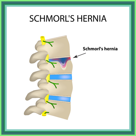 neuralgia: Hernia Schmorl. Intervertebral disc. Side view. Spine. Infographics. Vector illustration on isolated background
