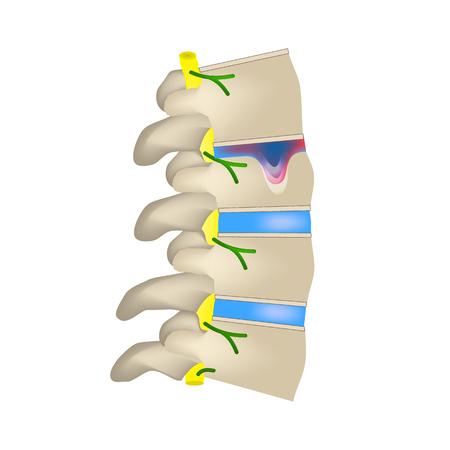 Hernia Schmorl. Intervertebral disc. Side view. Spine. Infographics. Vector illustration on isolated background