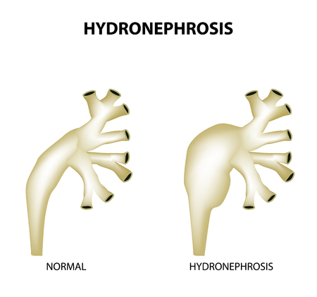 Hydronephrosis. Pelvis. Kidney. Infographics Vector illustration on isolated background