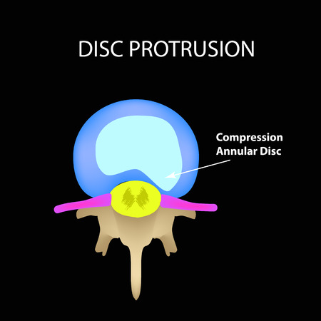 Disc protrusion. Top view. Spine. Infographics Vector illustration on a black background