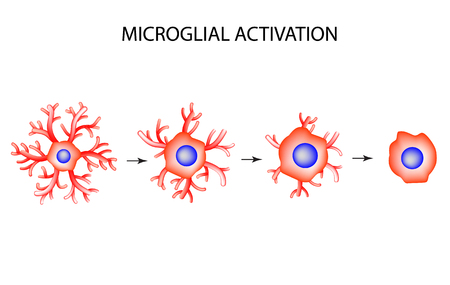 Activation of microglia. Neuron. Nerve cell. Infographics. Vector illustration on isolated background Vectores
