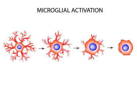 Die Struktur Von Mikroglia. Neuron. Nervenzelle. Infografiken ...