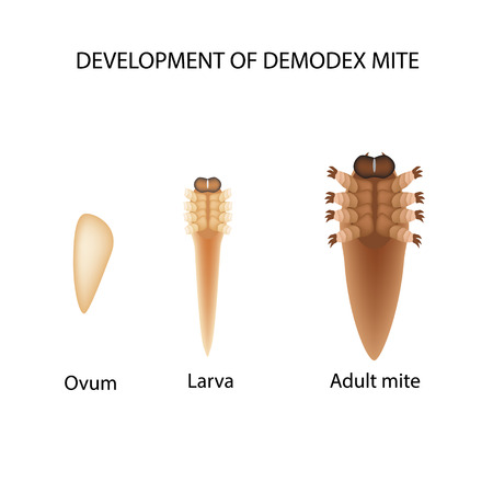 subcutaneous: Reproduction of the mite Demodex. Larva, adult. Demodecosis. Infographics. Vector illustration on isolated background