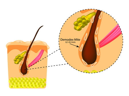 The structure of the hair. Sebaceous gland. Introduction of demodex mite. Demodecosis. Infographics. Vector illustration on isolated background. Illustration