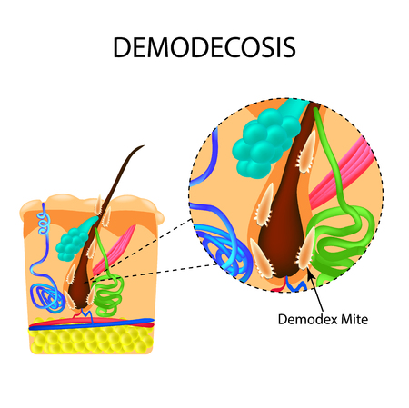 sebaceous gland: The structure of the hair. Sebaceous gland. Sweat gland. Introduction of demodex mite. Demodecosis. Infographics. Vector illustration on isolated background. Illustration
