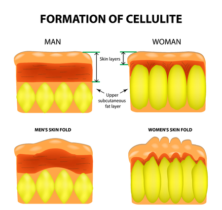 Cellulitis and skin aging in men and women. Infographics. Vector illustration on isolated background.