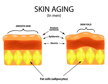 liposuction: Skin aging in men. Infographics. Vector illustration on isolated background.