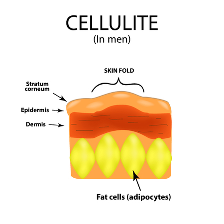 liposuction: Skin aging in men. Cellulitis. Infographics. Vector illustration on isolated background.