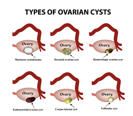 cystic: Types of ovarian cysts.