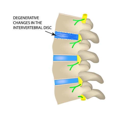 Degenerative changes in the intervertebral disc. Vector illustration on isolated background. Ilustração