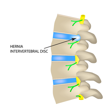 A hernia of the intervertebral disc. Vector illustration on isolated background