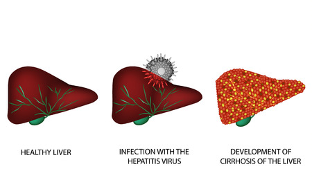 liver cells: Consequences of hepatitis. Illustration