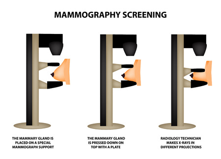 Stages of mammography. Mammographic screening. Mammogram apparatus. World Breast Cancer Day. Infographics. Vector illustration on isolated background Vectores