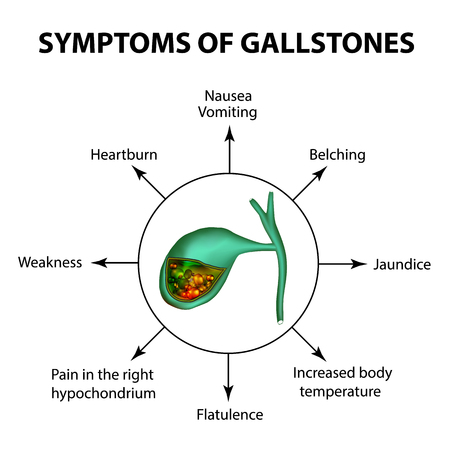 cystic duct: Symptoms of stones in the gallbladder. Infographics. Vector illustration on isolated background.