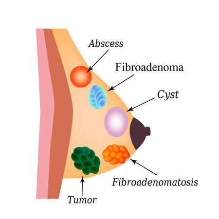 Fibroadenomatose, Fibroadenom, Abszess, Tumor, Zyste in der Brustdrüse. Welttag für Brustkrebs. Vektorabbildung auf getrenntem Hintergrund. Vektorgrafik