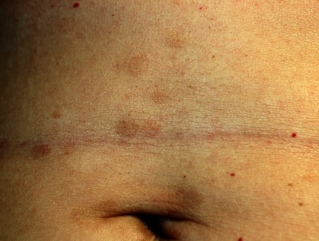 Red Flat Lichen planus. Red spots on the skin of the abdomen.
