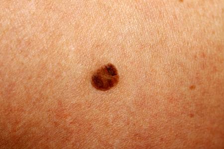 Brown spot on the skin. Birthmark on the body.