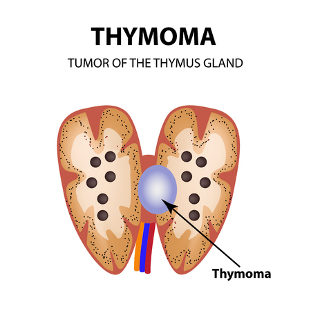 Tumor of the thymus gland. Thymoma. Infographics. Vector illustration on isolated background.