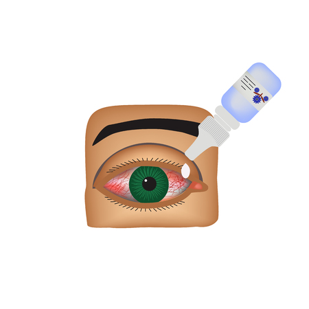 itchy: Conjunctivitis. Redness and inflammation of the eye. Vessels. Eye drops. Infographics. Vector illustration on isolated background.