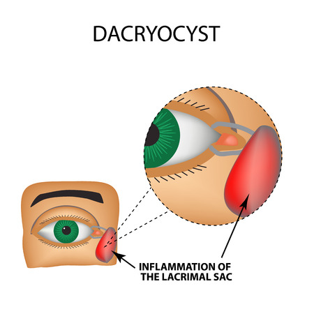 lacrimal: Dacryocyst. Inflammation of the lacrimal sac of the eye. The structure of the eye. Infographics. Vector illustration on isolated background.