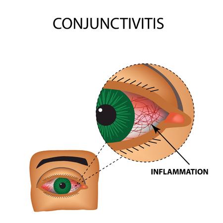 Conjunctivitis. Roodheid en ontsteking van het oog. Schepen in het oog. Infographics. Vectorillustratie op geïsoleerde achtergrond.