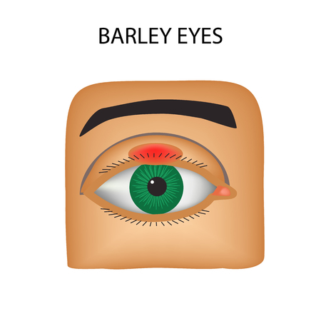 Barley eyes. Purulent inflammation. The structure of the eye. Infographics. Vector illustration on isolated background. Illustration