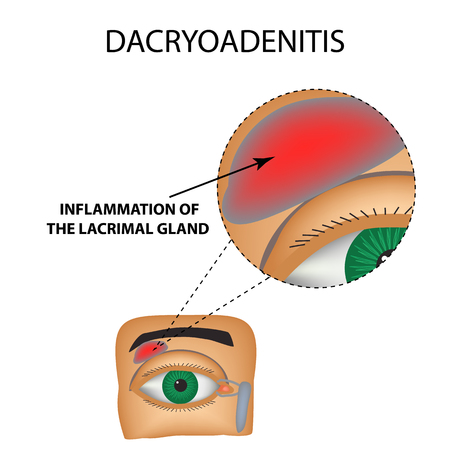 Dacryoadenitis. Inflammation of the lacrimal gland. The structure of the eye. Infographics. Vector illustration on isolated background