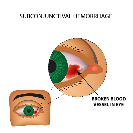 The vessel in the eye burst. Inflammation and redness. The structure of the eye. Infographics. Vector illustration on isolated background.