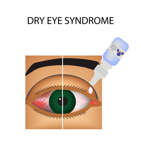 itchy: Conjunctivitis. Redness and inflammation of the eye. Vessels. Eye drops. Treatment. Infographics. Vector illustration on isolated background.
