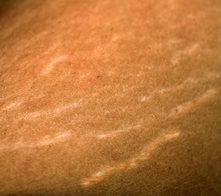 Stretch marks on the skin. Scars on the body. Stretch marks on legs. Cellulite